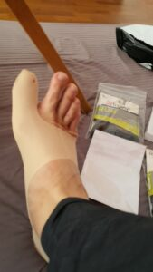 Bunion corrector, photo provided by our customer