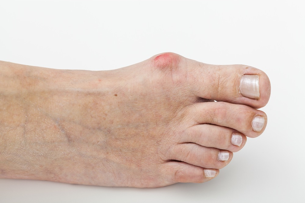 Bunion on the right foot