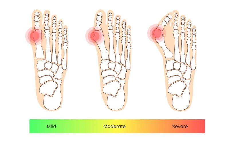 various stages of bunion severity, ranging from mild to severe