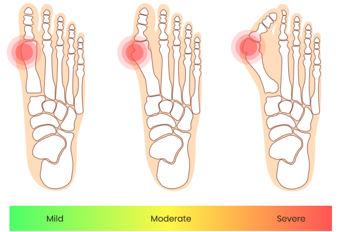 bunion stages