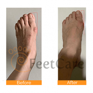 bunion real conditions