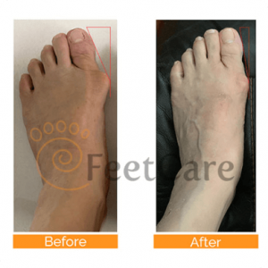 bunions real conditions