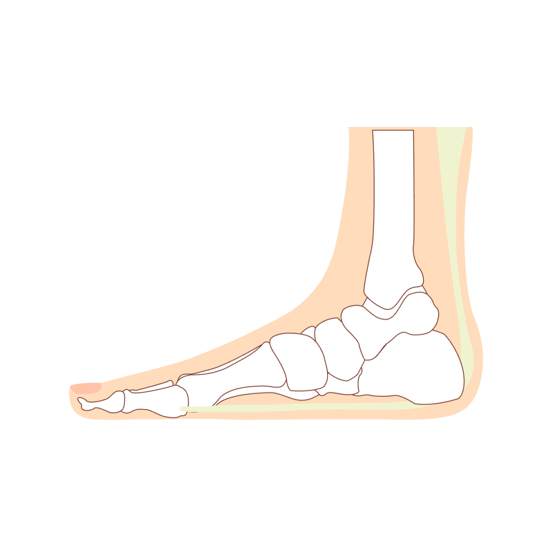 Feet Care flat foot treatment