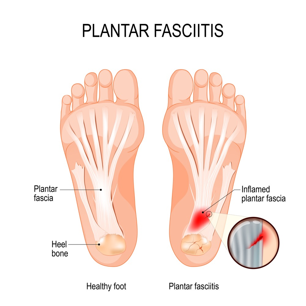 diagram showing how inflammation of the plantar fascia causes plantar fasciitis