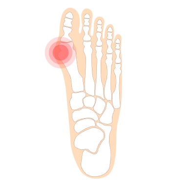 Feet Care specialist for bunions in Singapore